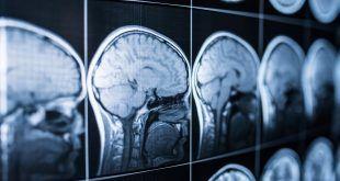 Un hombre afirma que perdió la capacidad de sentir miedo luego de que le extirparan parte del cerebro
